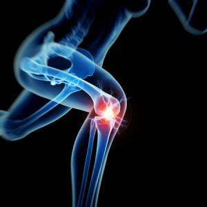 26850082 - woman having acute pain in the knee
