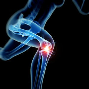 26850082 - woman having acute pain in the knee